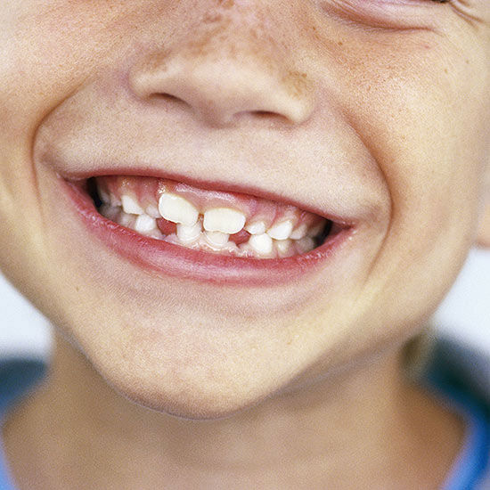 Does Your Child Need An Orthodontist