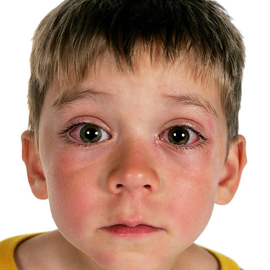 Allergic Conjunctivitis Vs Bacterial Pictures To Pin On: Pinkeye (Conjunctivitis) Symptoms And Treatment
