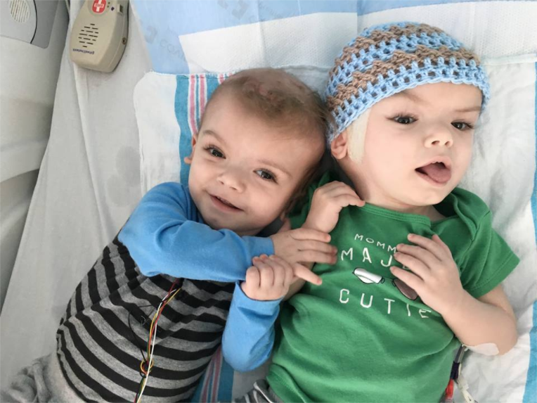 Update Conjoined Twins Are Making Incredible Progress