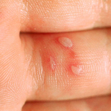 Hand, foot, and mouth disease (HFMD)