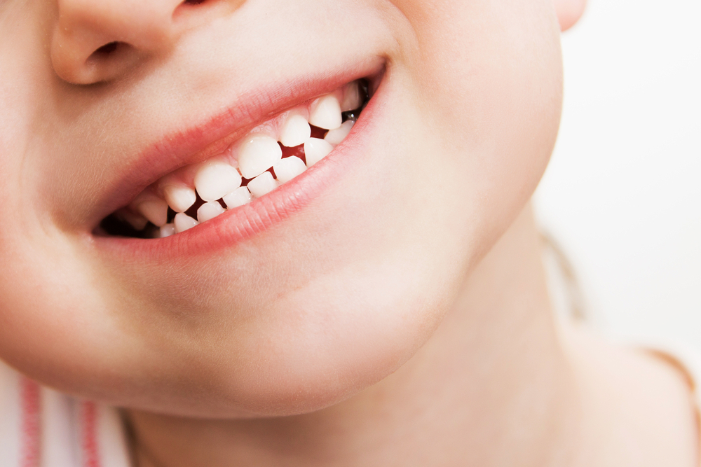 What Parents Need To Know About The Child Who Died Under Dental Anesthesia