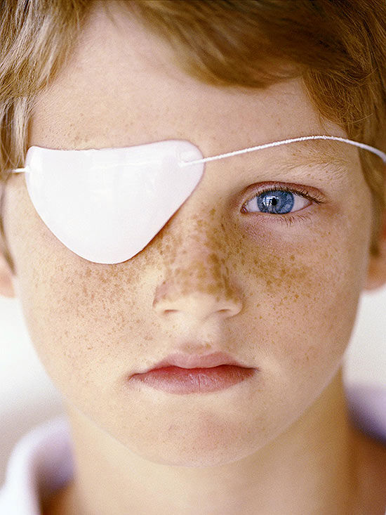 Does Your Child Need an Eye Patch?
