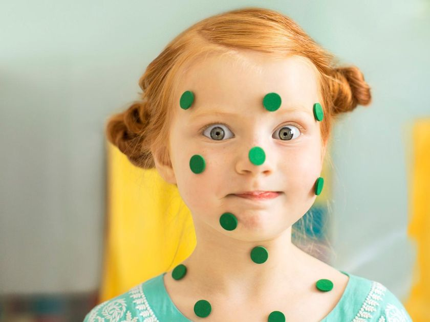 Is your child really sick 6 signs your kid could be faking it and girl with green sticker chicken pox altavistaventures Choice Image