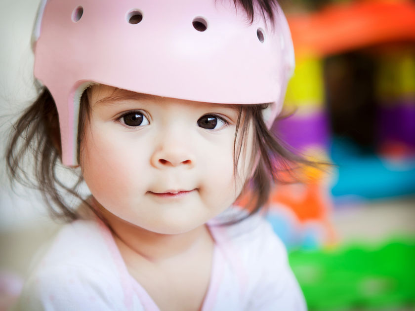 girl with plagiocephaly