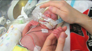 Guidelines Help Save Babies Born Extremely Early
