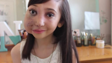 nikki lilly vlogger with facial malformation