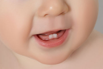baby teeth clues to autism