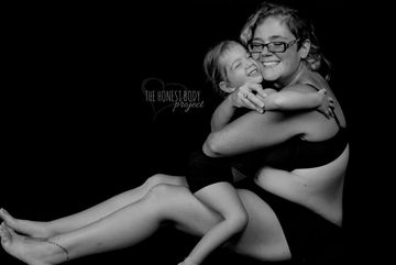honest body project special needs photo of mom and daughter hugging