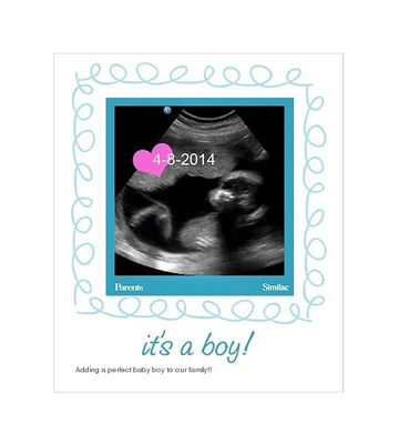 We're Having a Baby: Boy Sonogram