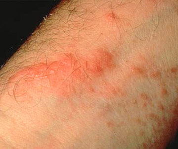 Causes And Cures Of Rashes