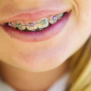 The facts about dental braces for kids girl with braces solutioingenieria Choice Image