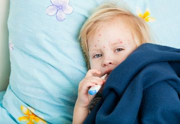 Sick-Girl-Child-Measles