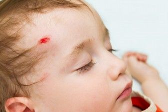 Falls Are Top Cause of Head Trauma in Children