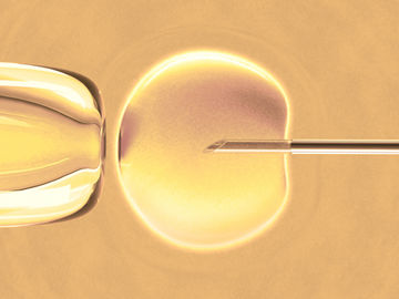 Study: More Embryos Not Necessarily Better in IVF 29438