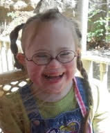 21 Faces of Down Syndrome