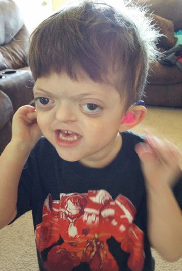 jameson with pfeiffer syndrome