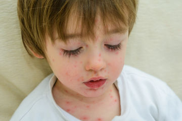 Young boy with chickenpox