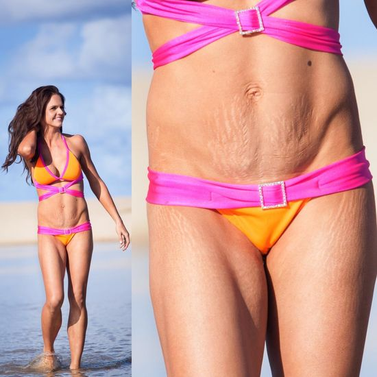 Abs after pregnancy stretch marks