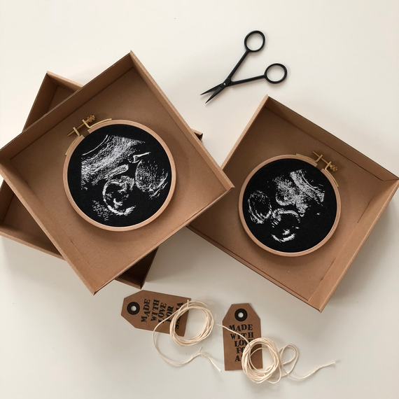 Embroidered Sonogram Photo in a Hoop in a Box